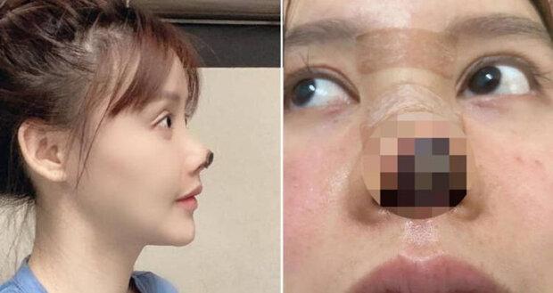 Після легкої пластики обличчя у юної актриси почав відмирати ніс