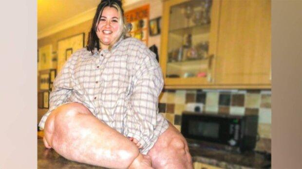 ноги дівчини роздулися до неймовірних розмірів
