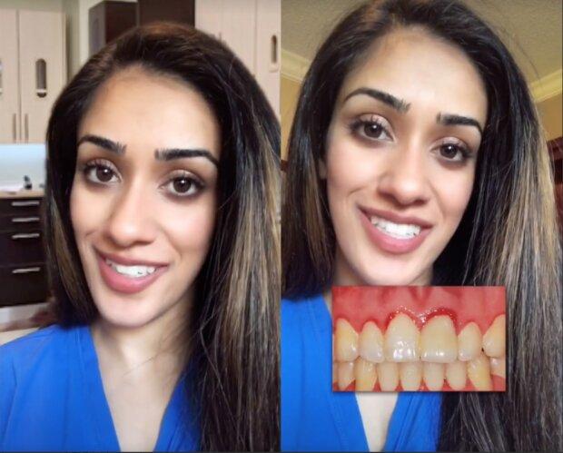 студентка-стоматолог розповіла, як впізнати вагітність