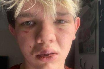 хлопчика з аутизмом побили заради розваги
