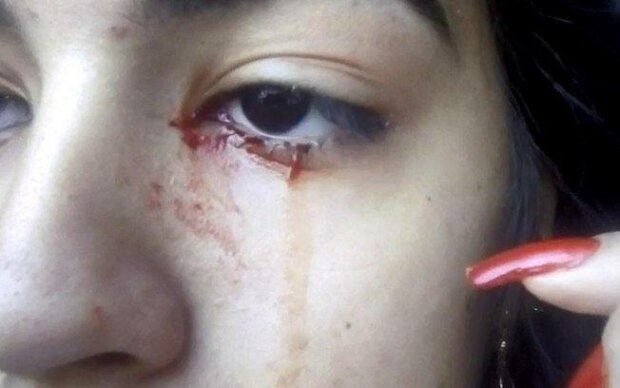 15-річна дівчинка тиждень плаче кров'ю
