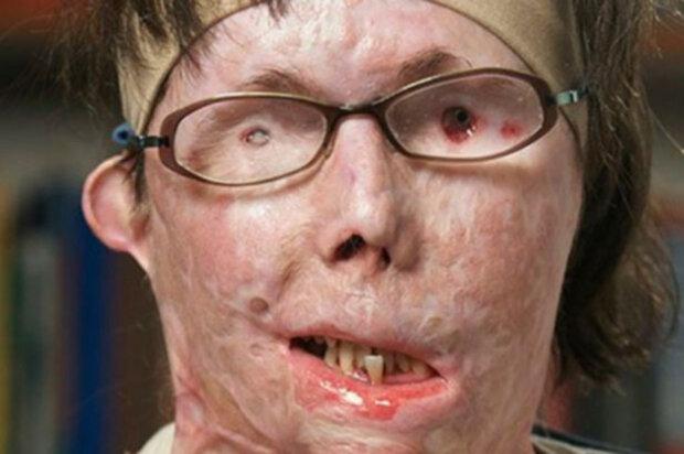 Коханець випалив жінці обличчя кислотою