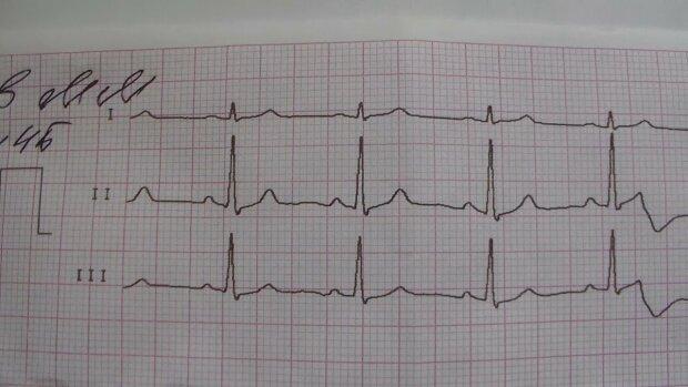 Ознаки проблем із серцем в юному віці: це потрібно знати кожному