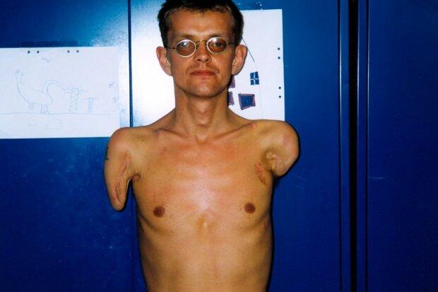 мужчине сделали трансплантацию рук