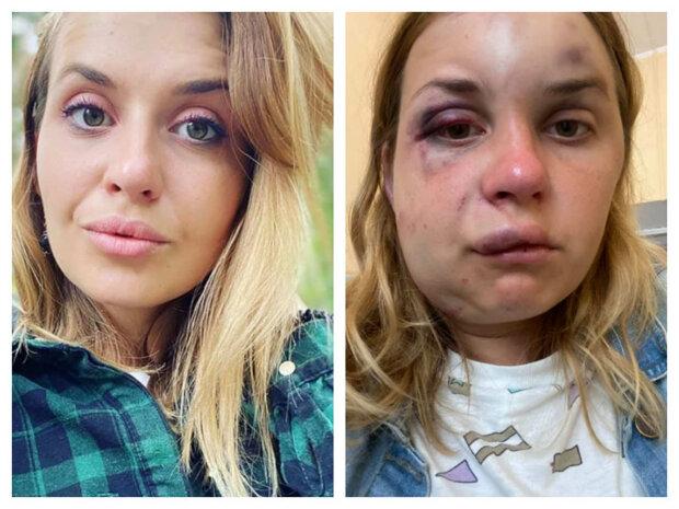 Жертва нападу у потязі